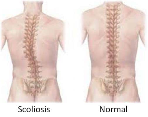 physiotherapy, treat scoliosis, Scoliosis, physio near me, adelaide physio therapy,