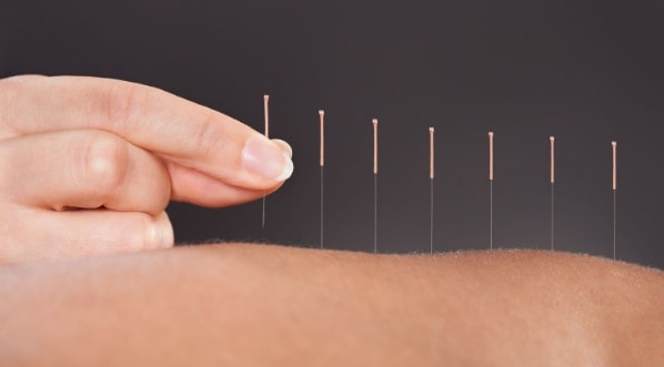 Dry-Needling-Physio-Adelaide