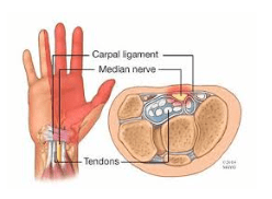 carpal tunnel relief